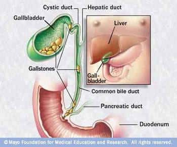 Coffee to Prevent gallstone disease