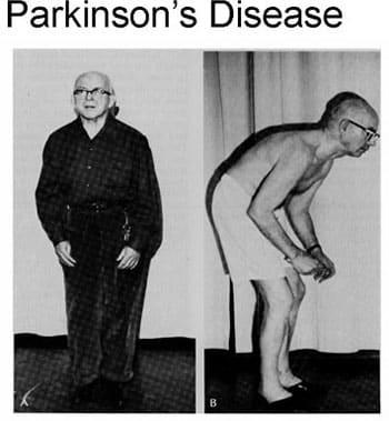 coffee-health-benefits-Parkinsons-disease
