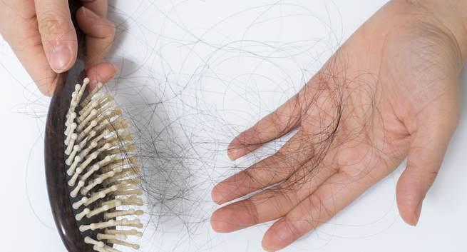 Dandruff Side Effects, hair loss