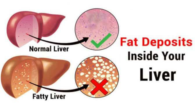 difference between fatty liver and normal liver