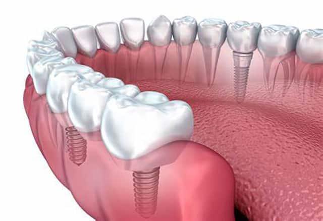 reasons for dental health